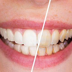 Closeup of white teeth before and after whitening