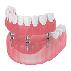 Partial dentures and dental implants for lower arch