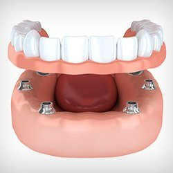 Animation of implant denture placement