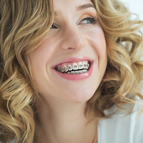 Woman with bracket and wire braces
