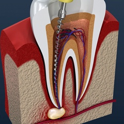 3D model of a root canal