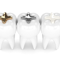 tooth with gold filling, tooth with silver filling, tooth with tooth-colored filling