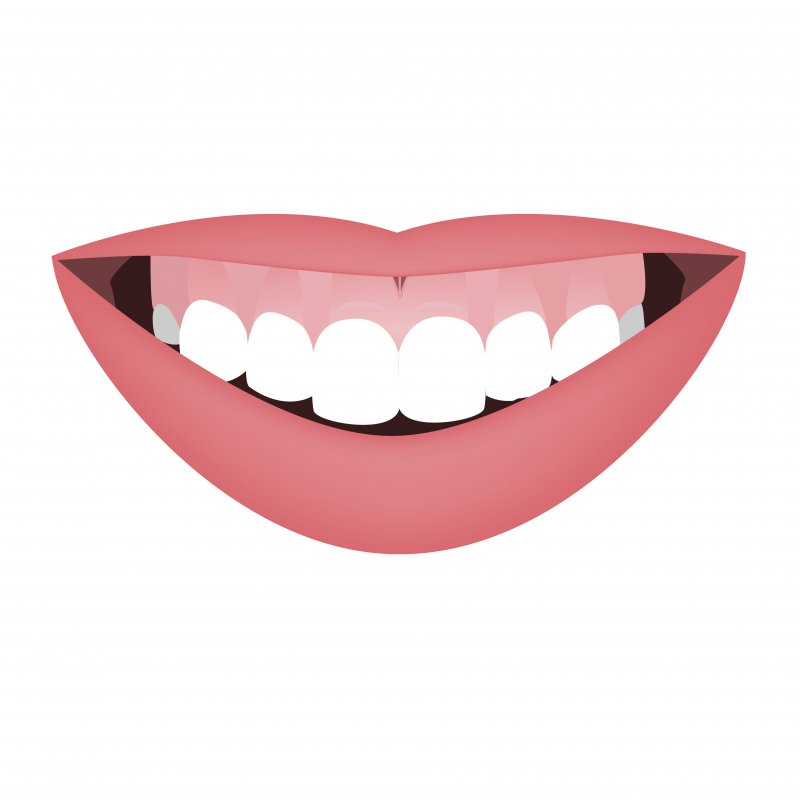 Illustration of lips and a gummy smile